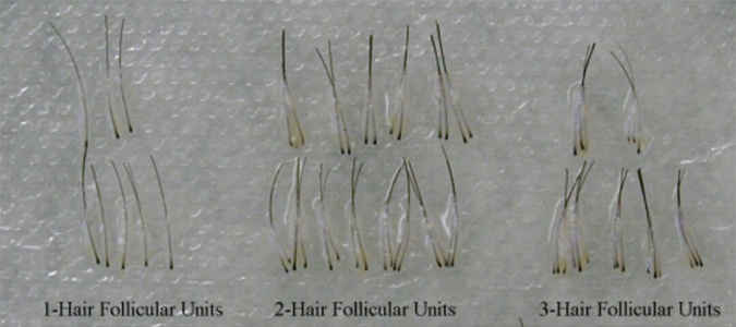 Hair-follicular-unit1